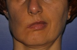 Long-standing facial paralysis on the right side of the face: asymmetry of features at rest.