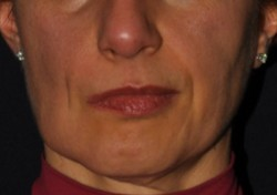 Symmetry of features after surgery.