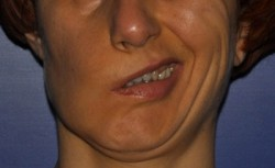 Worsening of the asymmetry of the face during smiling before corrective surgery.