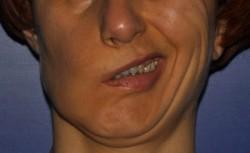 Peggioramento della asimmetria del viso durante il sorriso prima dell'intervento chirurgico correttivo