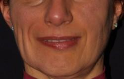 Simmetrizzazione del sorriso dopo l'intervento chirurgico