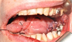 The tongue immediately after microsurgical reconstruction.