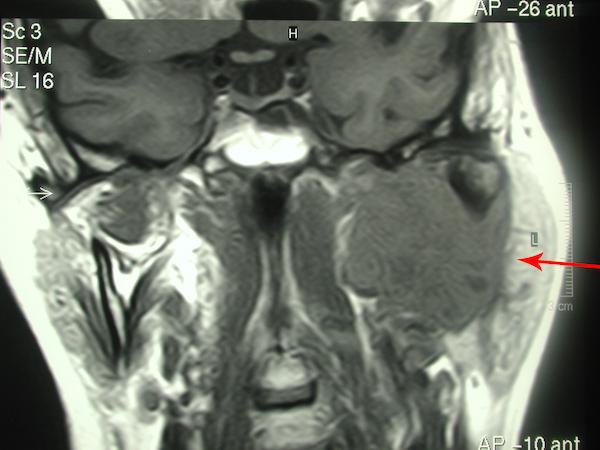 La Risonanza Magnetica documenta una estesissima recidiva di adenoma pleomorfo che occupa tutta la loggia parotidea profonda di sinistra