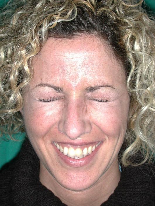 Conservazione della naturale mimica facciale al termine dell'intervento effettuato