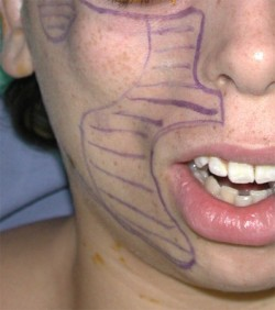Immediately before surgery, different parts of the face were sketched according to the grade of the atrophic regions
