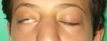 Chiusura palpebrale parziale prima del lipofilling