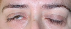 Severe right eyelid paralysis, limited preoperatively by a tarsorrhaphy (performed at another centre).