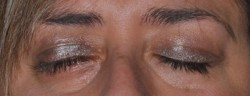 Complete eyelid closure was achieved after surgery.