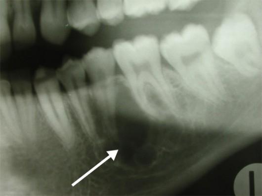 Odontogenic mandibular myxoma
