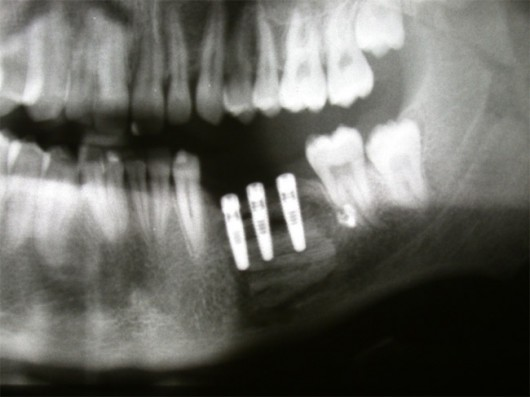 Panorex X-ray: three implants inserted into the grafted bone for prosthetic rehabilitation.