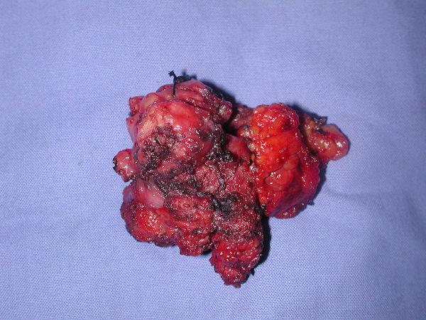 L'esteso adenoma (12 cm. di diametro) asportato completamente