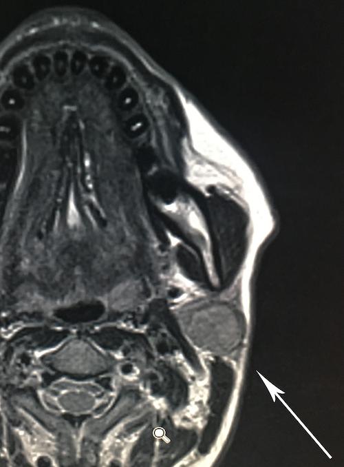 la risonanza magnetica preoperatoria documenta un ampio adenoma pleomorfo (freccia) della parotide sinistra