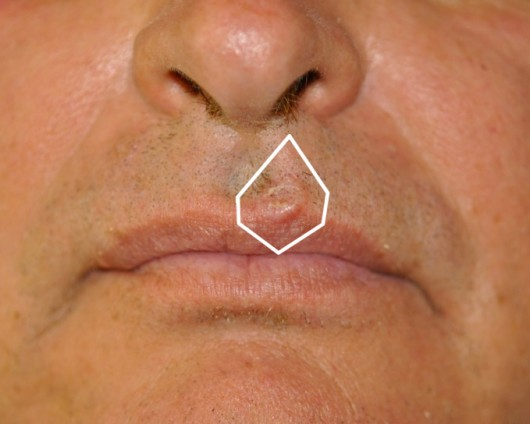 Basal cell carcinoma of the upper lip. Its complete removal required the sacrifice of a portion of healthy tissue surrounding the lesion.