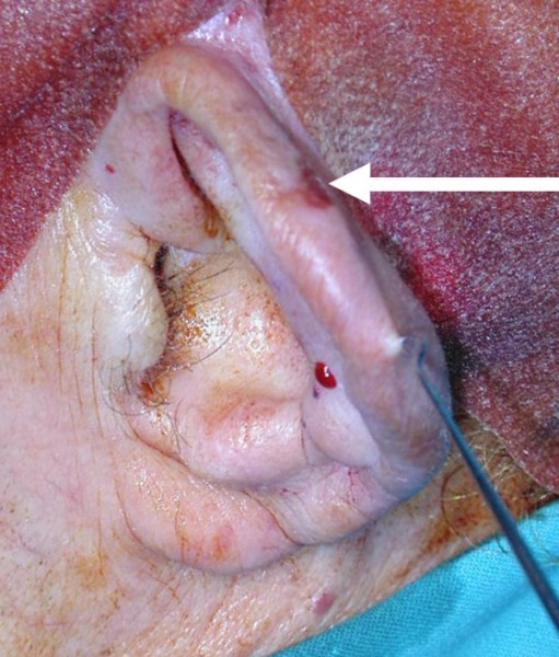Squamous cell carcinoma of the ear (arrow).