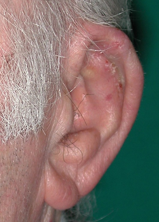 The reconstructed ear 1 month after surgery.