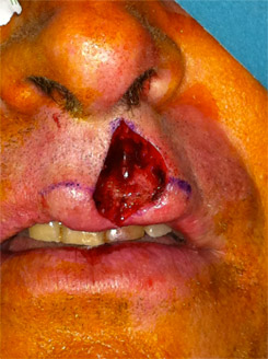 Lip appearance at the end of surgical removal of the lesion.