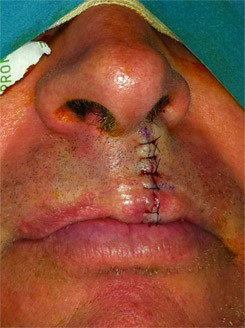 Appearance of the lip at the end of surgery.