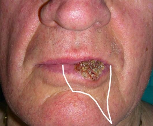 Carcinoma of the lower lip. Drawing of the incision lines before surgery was undertaken to obtain a subsequent scar that would look as natural as possible.