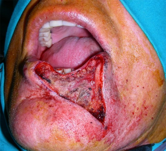 A wide portion of the lower lip was removed in the radical excision of the lesion.