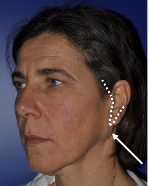 Linea di incisione corrispondente a quella tipicamente impiegata per eseguire il lifting facciale. Questo permette di mantenere nascosta e non visibile la cicatrice conseguente all'intervento chirurgico effettuato.