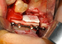 The bone surgical site reconstituted at the end of the microsurgical step.