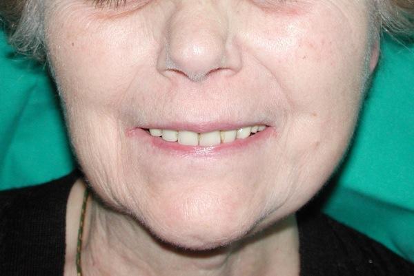 La perfetta funzione del nervo facciale dopo l'intervento