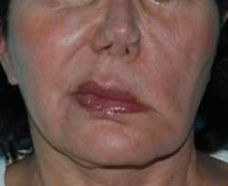 Pre-operative asymmetry of the cheek and lip at rest.