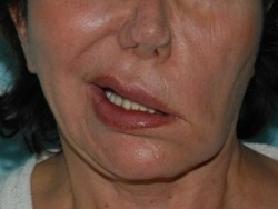 Worsening of the asymmetry during pre-operative smiling.