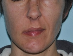 Lip motility deficit with lip dragging towards the left is evident when smiling.