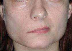 PRIMA - Asimmetria di medio grado del labbro superiore a riposo