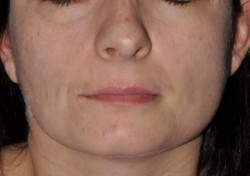 Symmetry of the face after surgery.