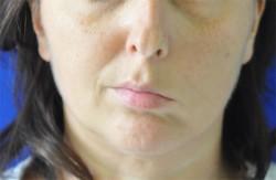 Asymmetry of the face for left facial paralysis.