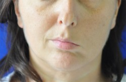Asimmetria del viso per paralisi facciale sinistra