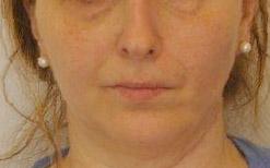 Simmetrizzazione del viso a riposo dopo l'intervento