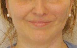 Sorriso ben bilanciato dopo l'intervento