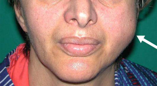Paziente con plurirecidiva di adenoma pleomorfo della parotide sinistra (freccia)