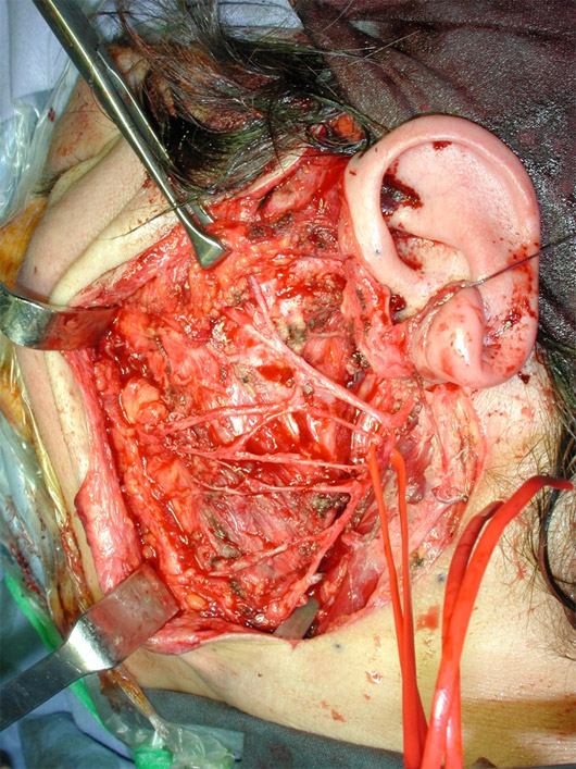 Il nervo facciale e le sue diramazioni (sottesi dalla fettuccia rossa) visualizzati e correttamente conservati al termine dell'asportazione di tutta la ghiandola parotide
