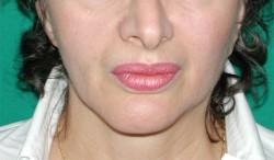 La simmetria del viso della paziente a distanza di due anni dall'intervento