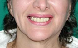 La simmetria della mimica facciale  dopo l'intervento