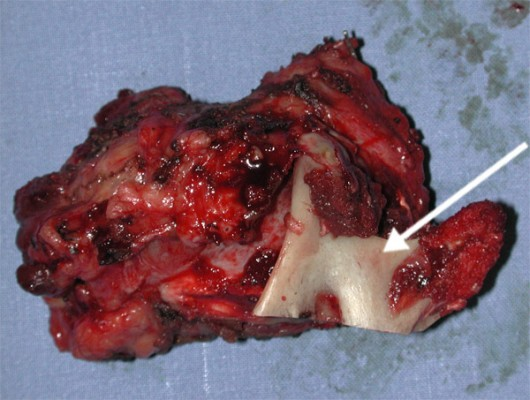 The need to radically remove the lesion resulted in the removal en bloc of the parotid gland, the mandibular branch (arrow), and facial nerve with its main branches.