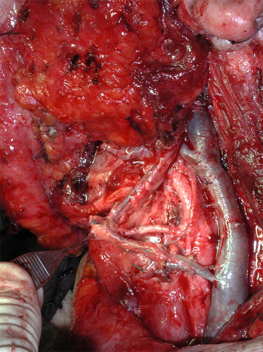 A microvascular flap from the latissimus dorsi avoided a postoperative hollowing in the operated region.