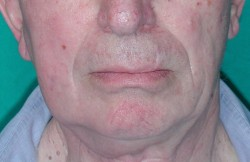 Morphology of the face correctly restored at 6 months after surgery.