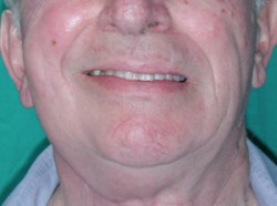 Good functionality of the facial nerve after surgery.