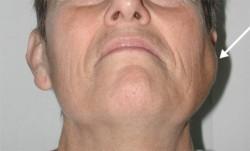 Malignant cancer of the parotid gland (arrow).
