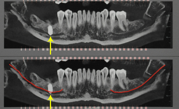 Nervo alveolare inferiore / Nervo mandibolare