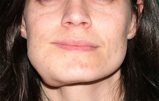 The face of a patient before surgery, altered by the presence of a mandibular tumour